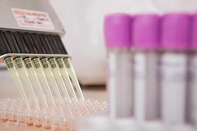 Permalien à: Information aux patients sur l'utilisation secondaire des prélèvements par l'Institut Pasteur de Nouvelle-Calédonie